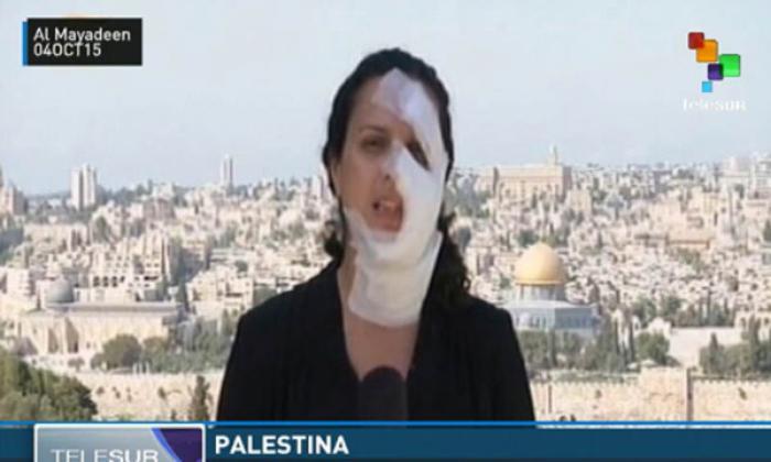 periodista palestina herida por ataques israelíes