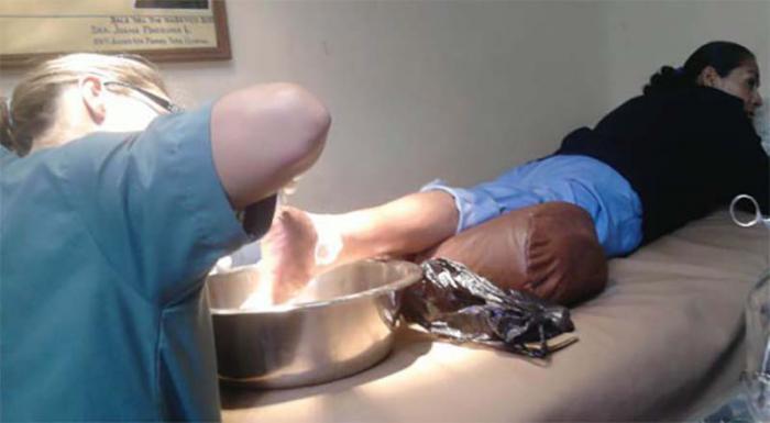 Pie diabetico que  recibe tratamineto con el Heberprot-P Publicada: 23/10/2013 Sapu4191